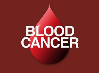 Blood Cancer - Causes and Treatment