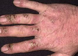 Los consejos del tratamiento atopicheskogo de la dermatitis