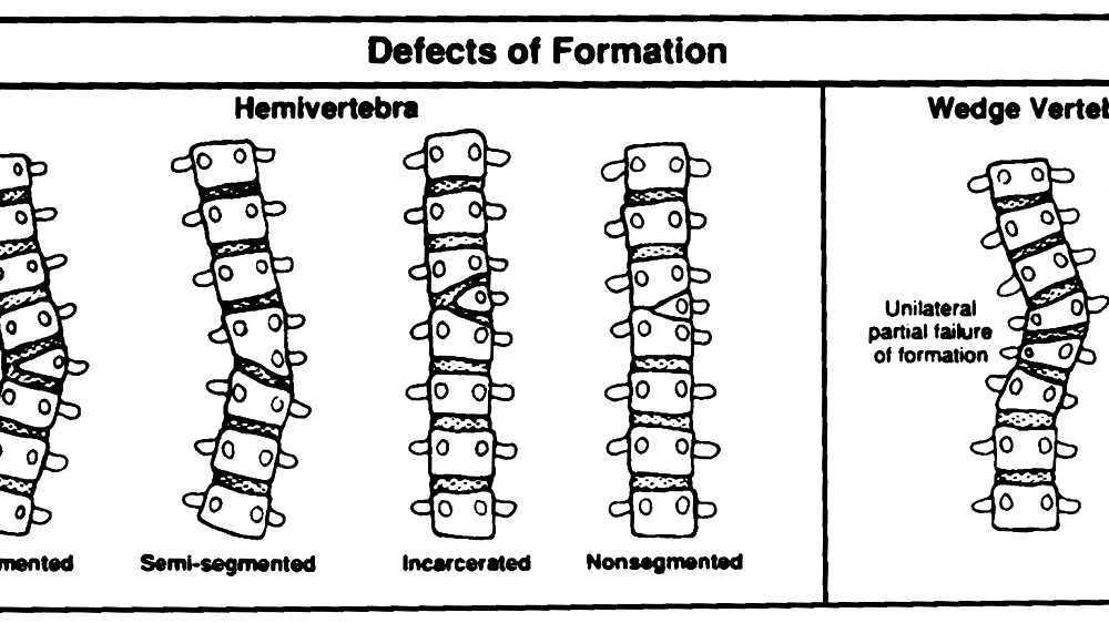 Congenital Vertebral Anomaly