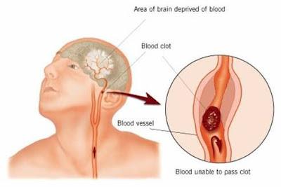 lima-cara-terbebas-dari-stroke