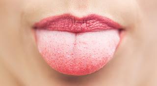 Causas del mal aliento o halitosis