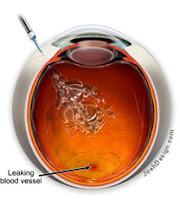 retisert steroid implant