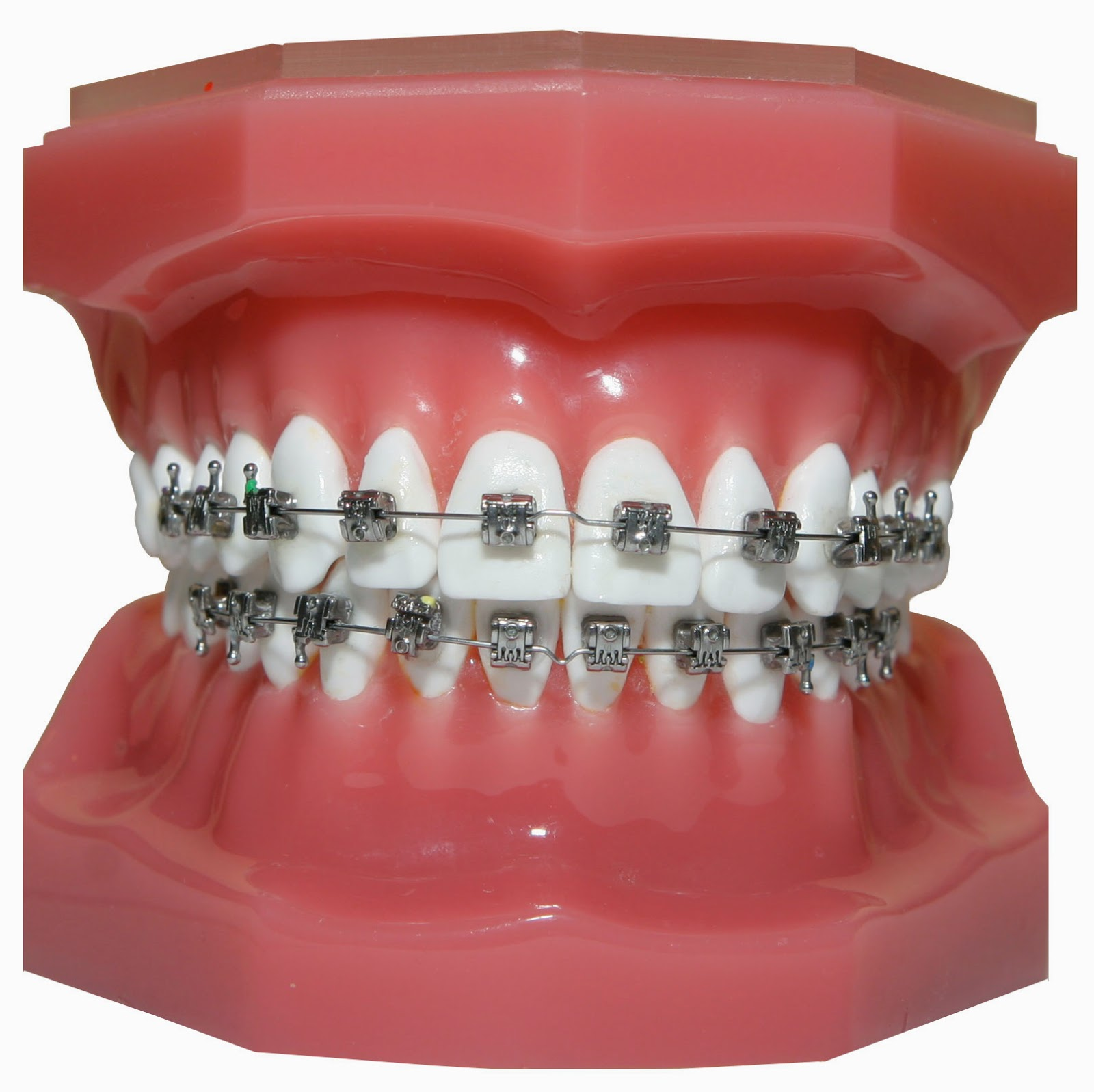 Get straight teeth - Get Straight Teeth 27