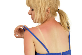 Knowing how to treat sunburns can make them a lot less painful.