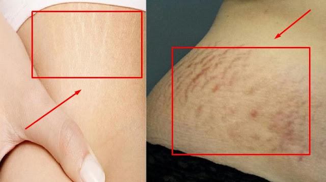 5 Bahan Alami ini bisa Bikin kulitmu yang bergaris Mulus Kembali loh!