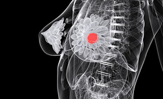 Potential Triple-Negative Breast Cancer Therapy Shows Promise