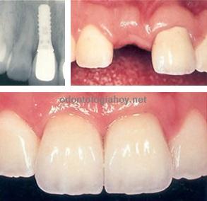implante dental diente adelante