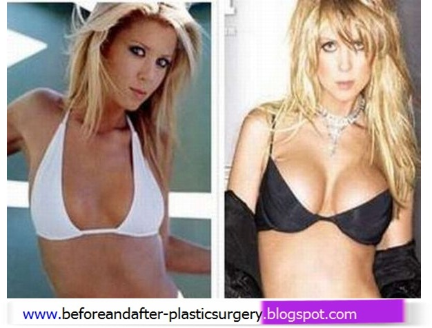 For brooklyn decker breast implants