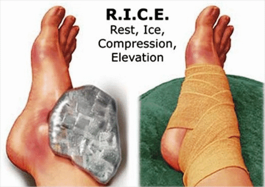 Soft Tissue Injuries Treatment, RICE