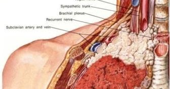 Cancer Treatment: Pancoast syndrome shoulder pain | detection and ...