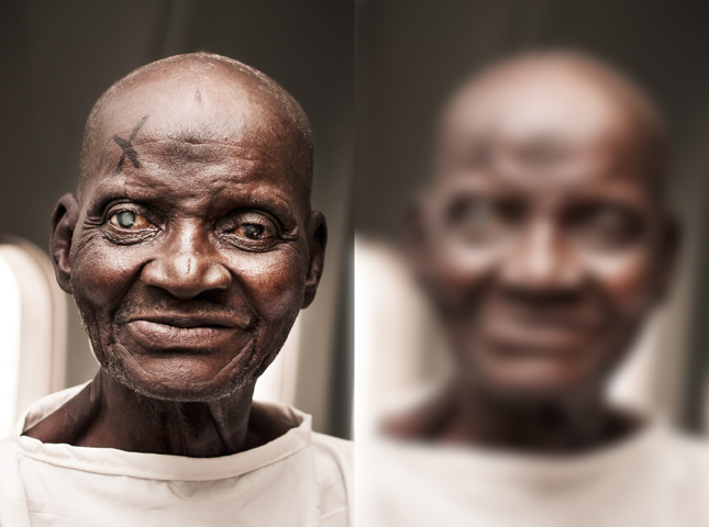 A man with a cataract, and a blurred photograph of the same man