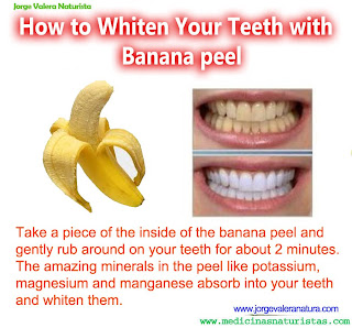 whiter teeth with bananas!
