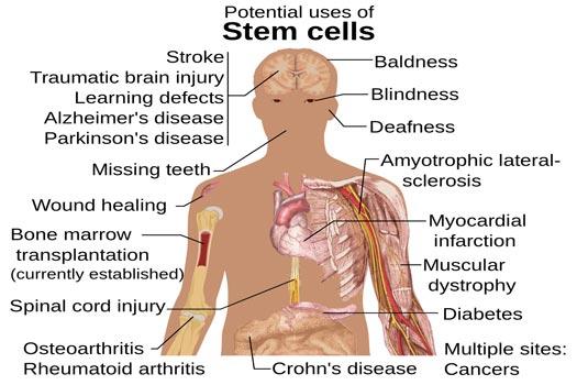 Terapi Stem Cell