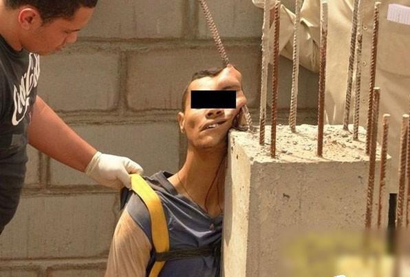фото несчастных случаев с луком