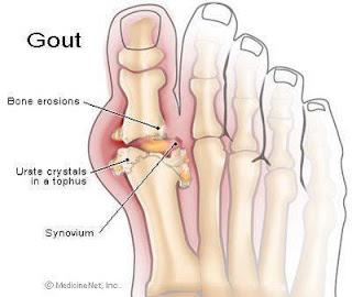 supplement untuk gout