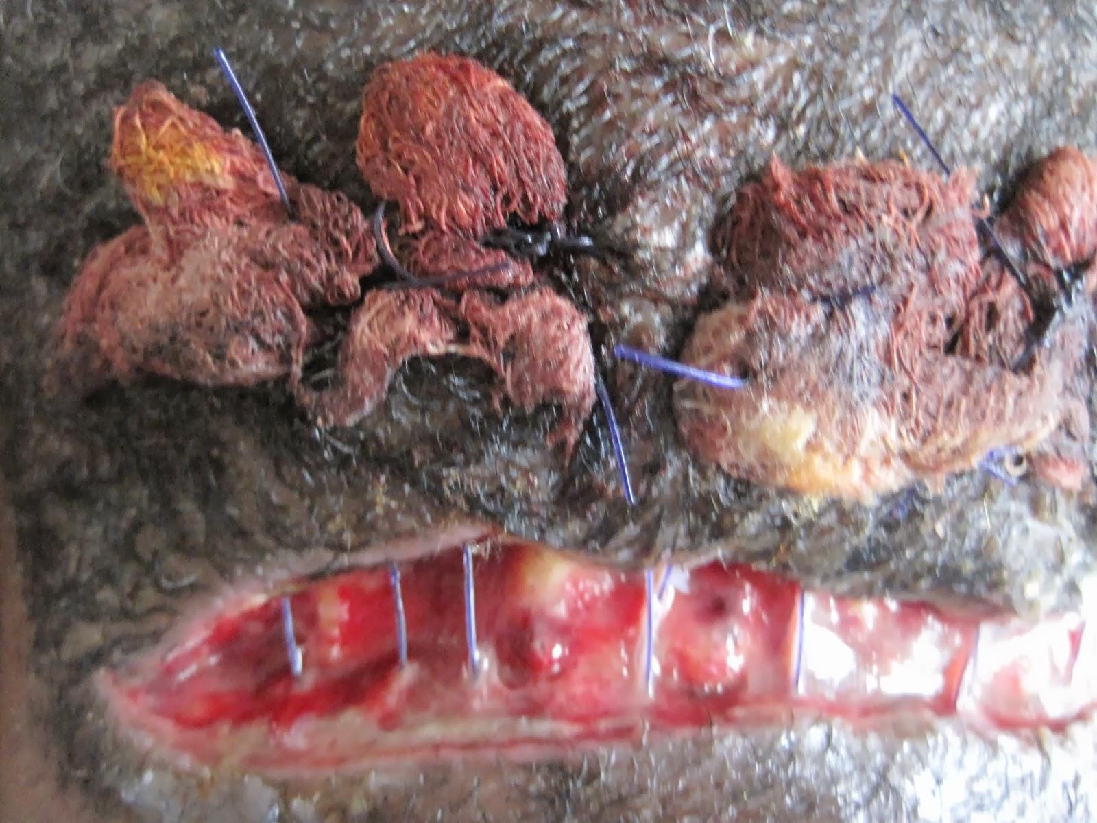 Acne Keloidalis Nuchae - Derm101