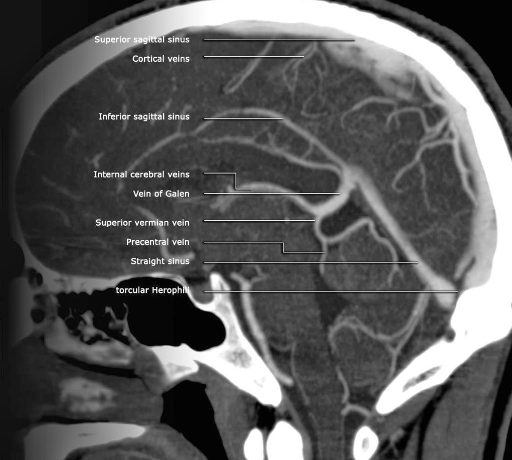 Brain Venous System Radiology Anatomy Radiology Anatomy Images