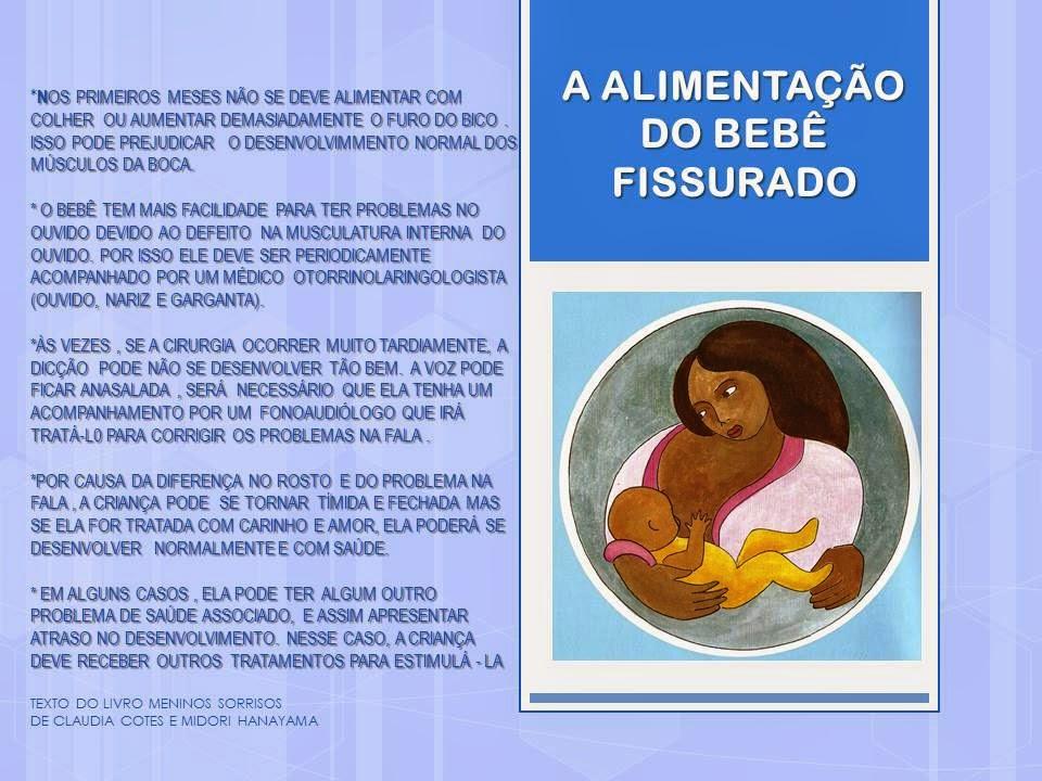 ALIMENTAÇÃO DO BEBÊ FISSURADO