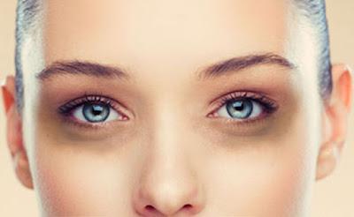 How do you clarify or remove dark circles?