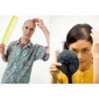 Stres Bisa Bikin Rambut Rontok gambar rambut rontok akibat stress