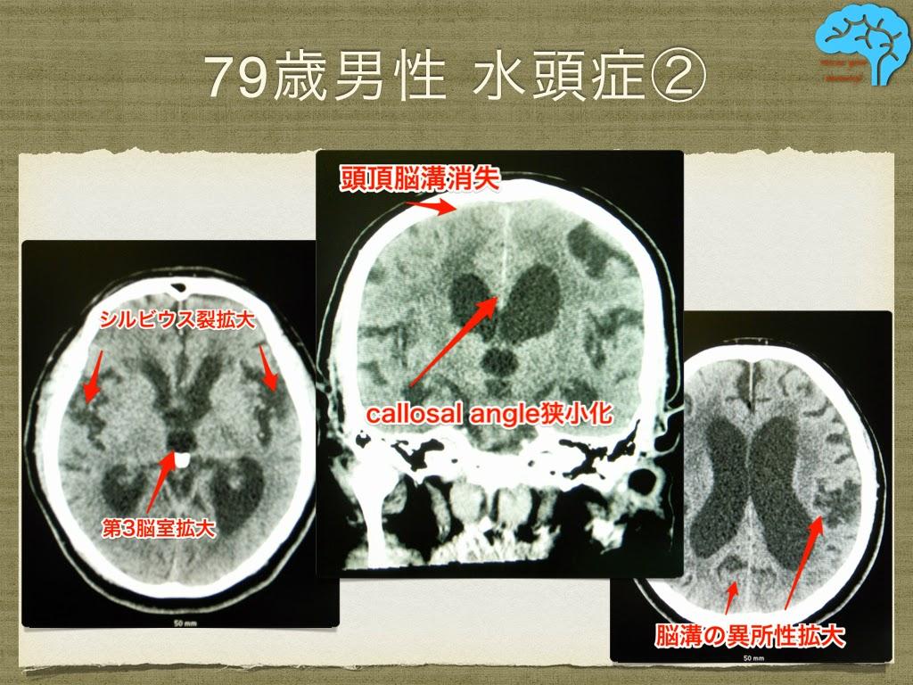 典型的な正常圧水頭症のCT画像