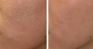 Cara Mengecilkan Pori Pori Wajah dan Menghilangkan Komedo