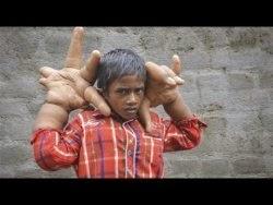 طفل هندي يبلغ وزن يديه 16 كيلوغراماً