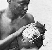 Mangbetu infant with head binding