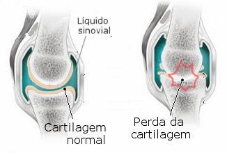 artrose diagnose