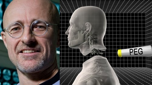Italian doctor wants to transplant a human head, and it's not a joke!