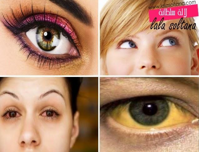 علاج اصفرار وإحمرار العينين