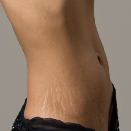 The Beauty Box: All about Stretch marks