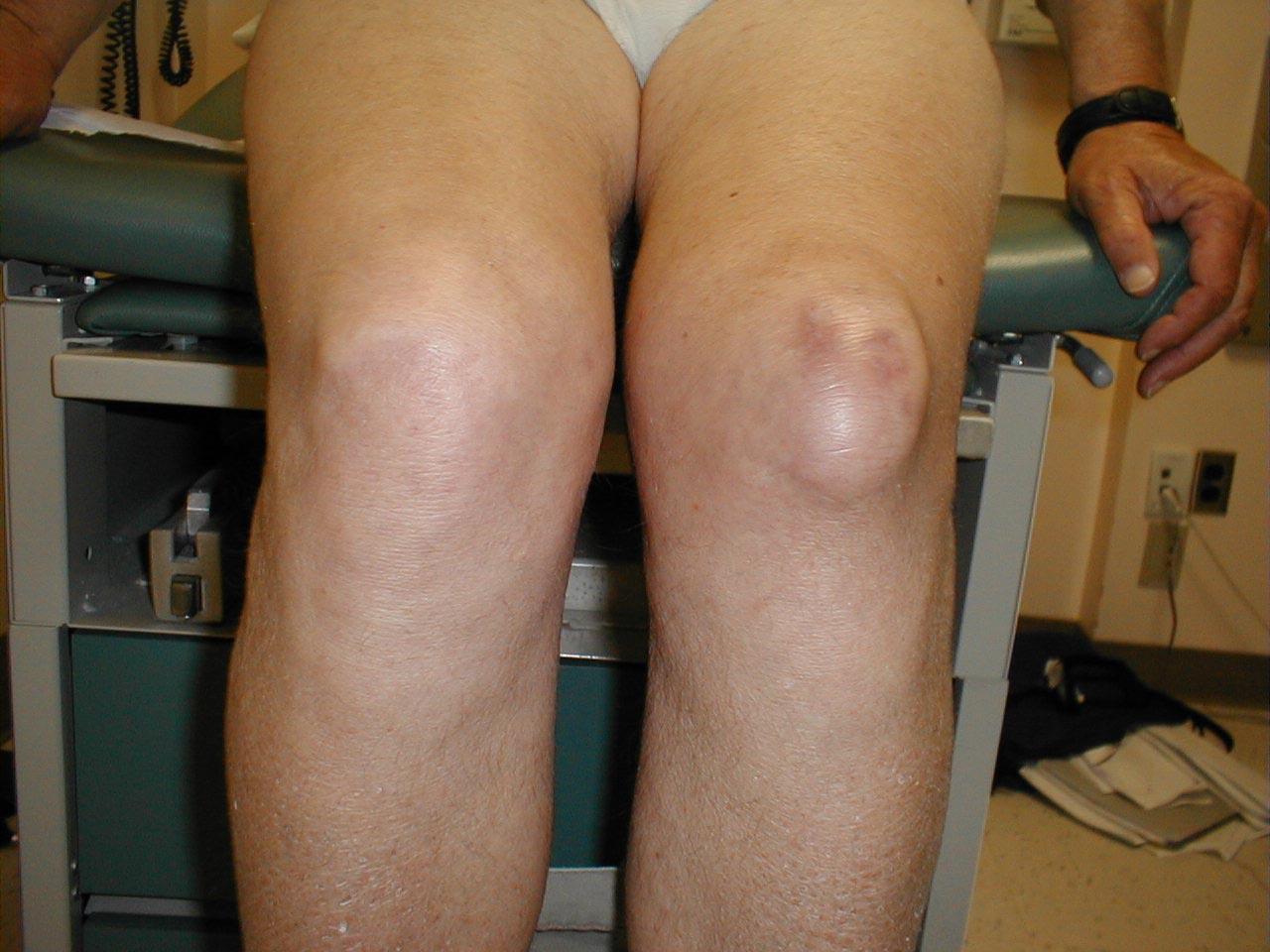 Prepatellar Bursitis of the Knee