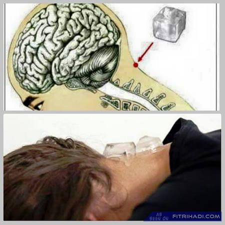 Viral Tips Hilangkan Sakit Kepala Migrain Mengunakan Ais