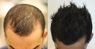 زراعة الشعر نهاية الصلع الوراثي