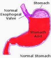 patients with Stomach Acid