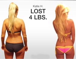 BBL transformation results brazil butt lift