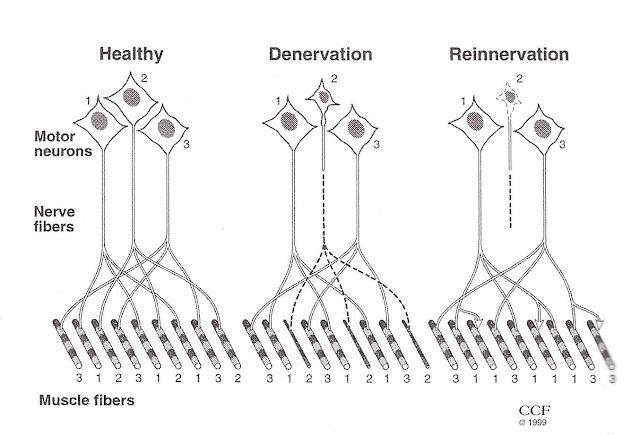 ALS nerve degeneration