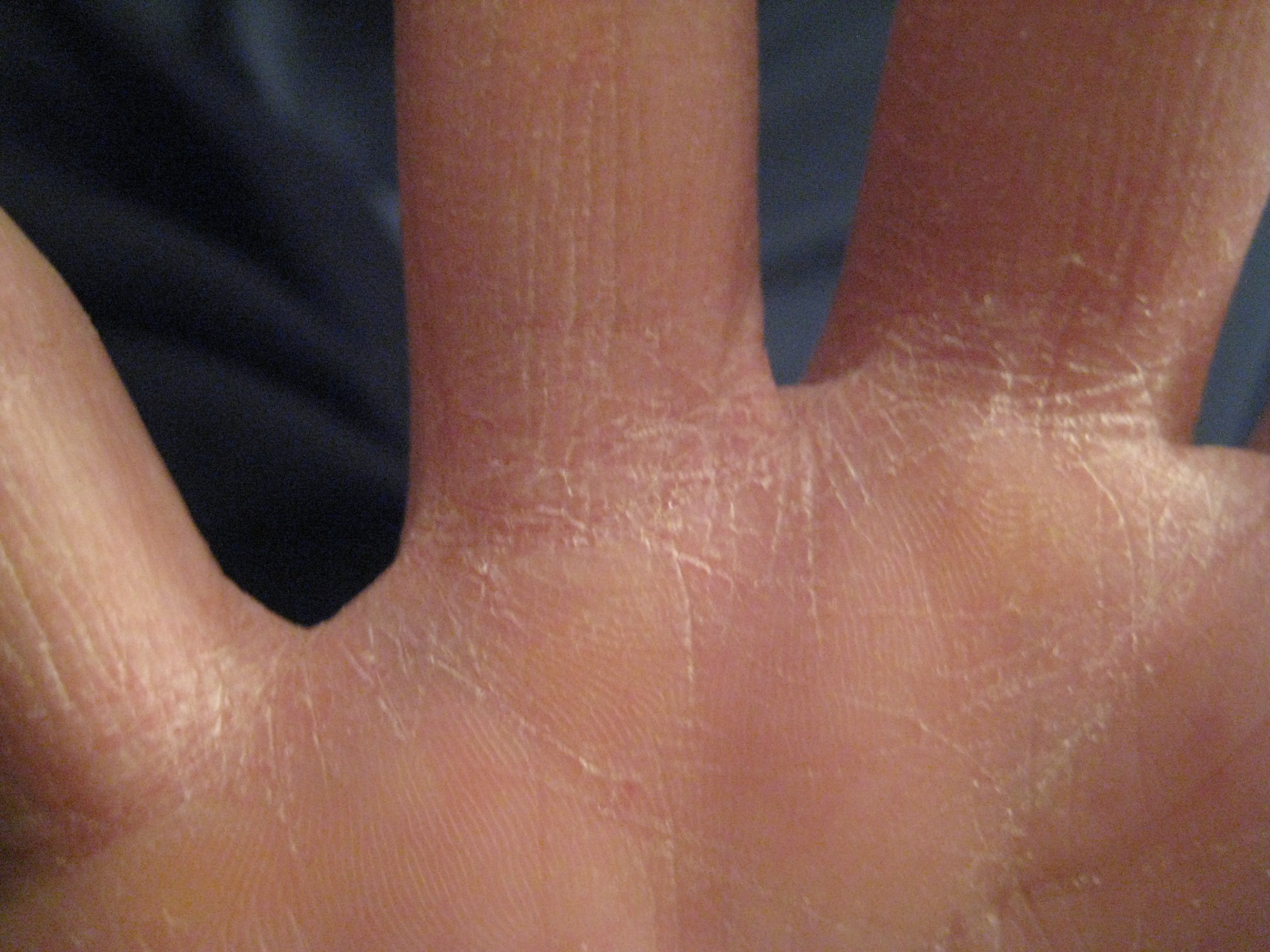 how to fix dry cracking bleeding hands