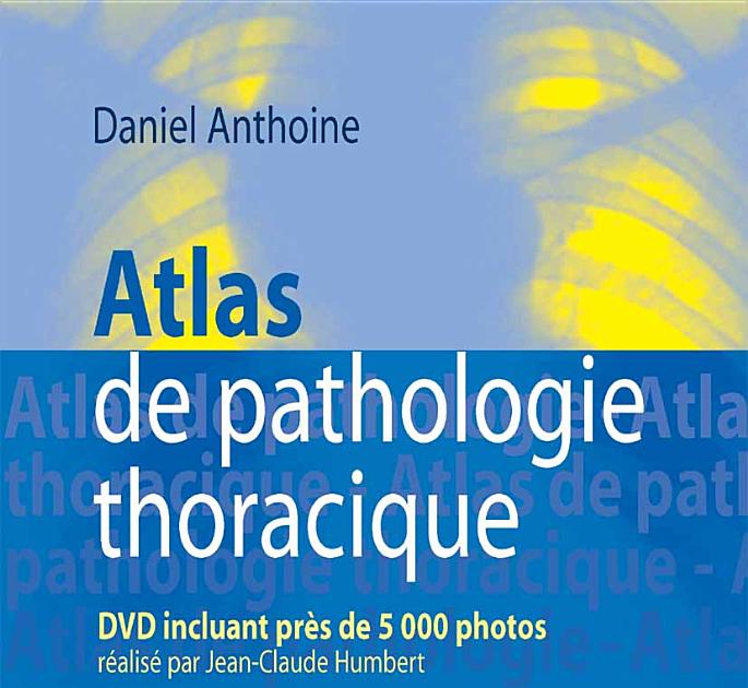 THORACIQUE PATHOLOGIE TÉLÉCHARGER DE ATLAS