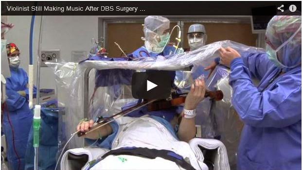 فيديو : عازف كمان يعزف أثناء إجراء عملية على دماغه