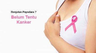 Perbedaan benjolan kanker dan non-kanker pada payudara