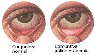 Conjuntiva pálida