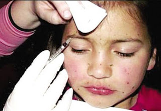 8-letnia dziewczynka, której matka wstrzykuje botoks. An 8-year-old girl whose mother injects botox.