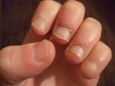 Tips, recommendations and remedies for not biting your nails
