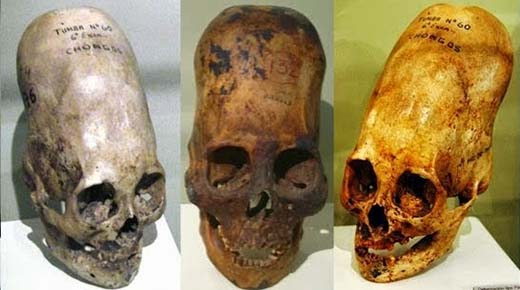 Elongated Skulls in utero: A Farewell to the Artificial Cranial Deformation Paradigm?