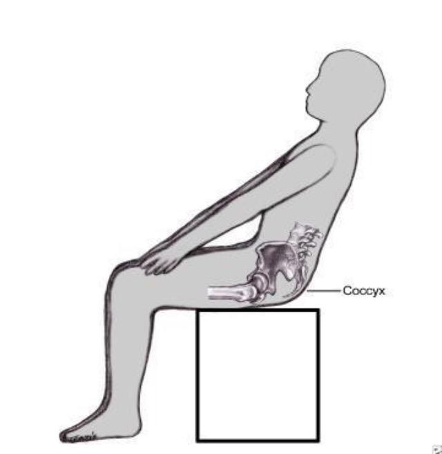 Как лечить боли в копчике в домашних условиях 828