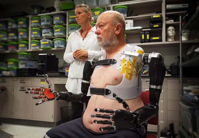 bionic arm man