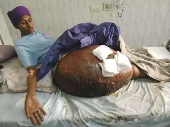 Man with World's biggest tumour.