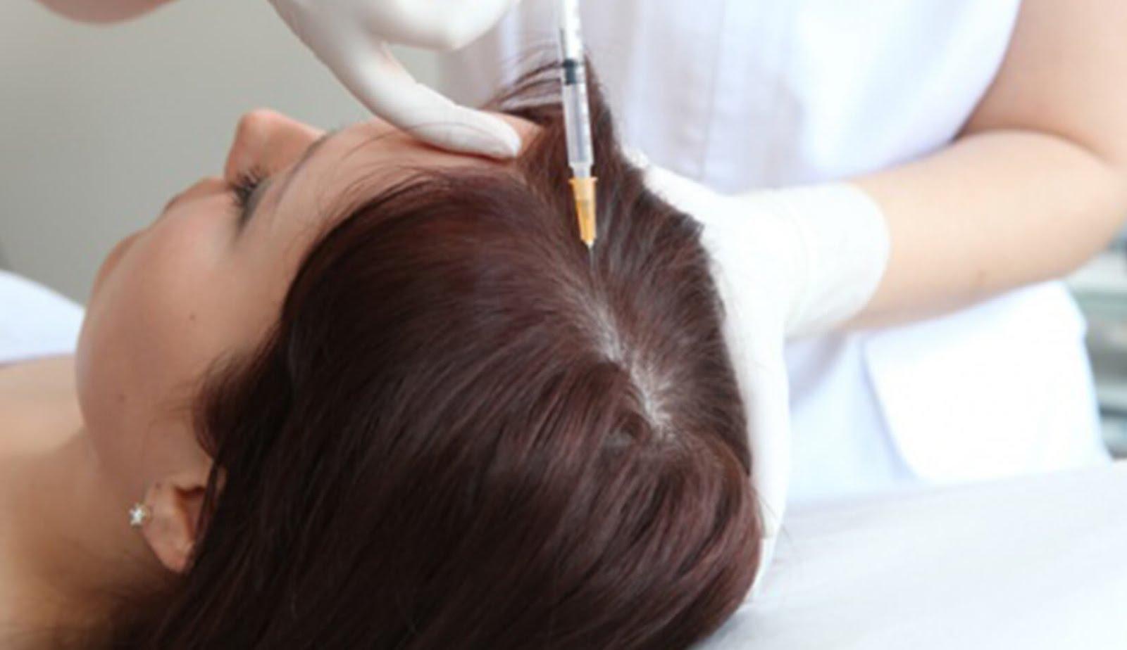 حل لتساقط الشعر بحقن البلازما